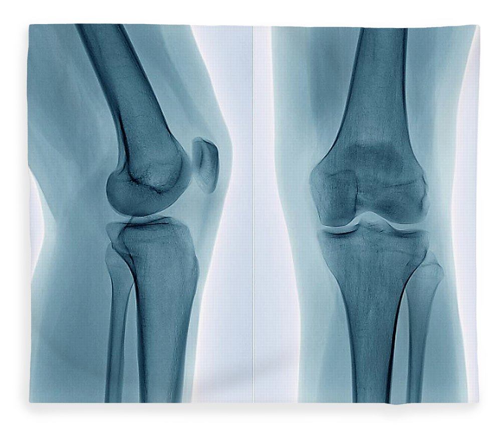 White Background Fleece Blanket featuring the photograph Healthy Knee, X-ray by Zephyr