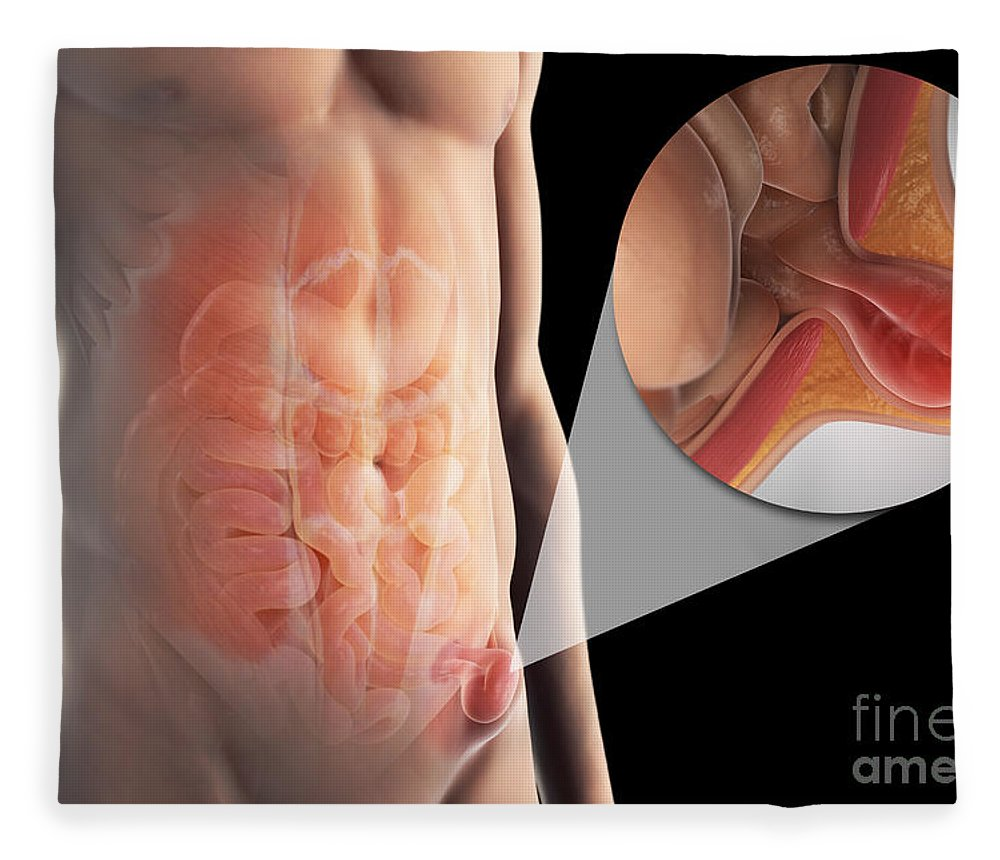 Inguinal Hernia Fleece Blanket for Sale by Science Picture Co