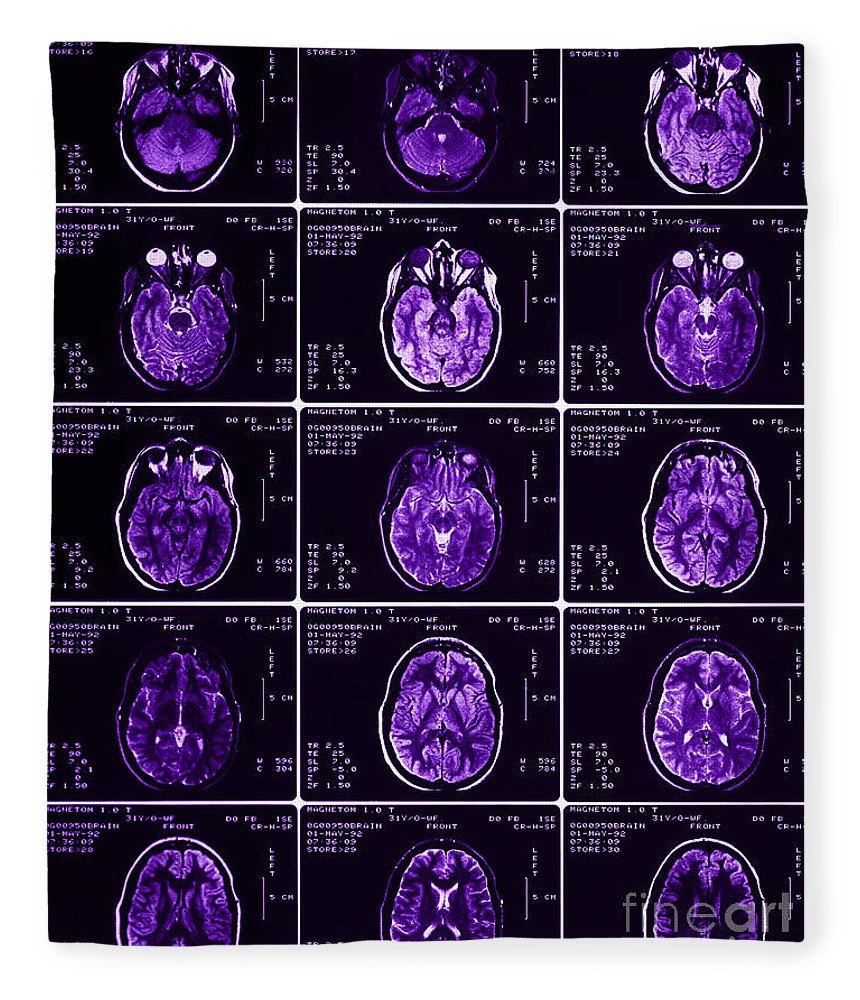 Brain Fleece Blanket featuring the photograph Mri Of Normal Brain by Science Source