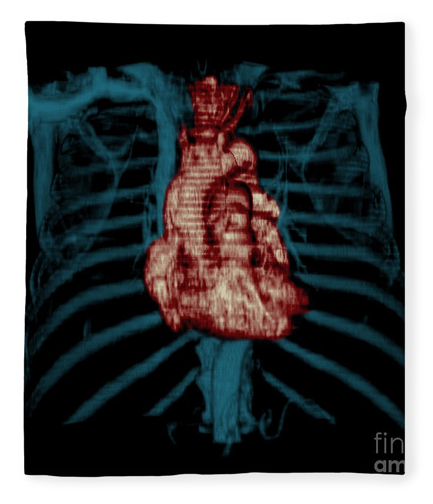 Ct Of Chest Fleece Blanket featuring the photograph 3d Ct Reconstruction Of Heart by Medical Body Scans