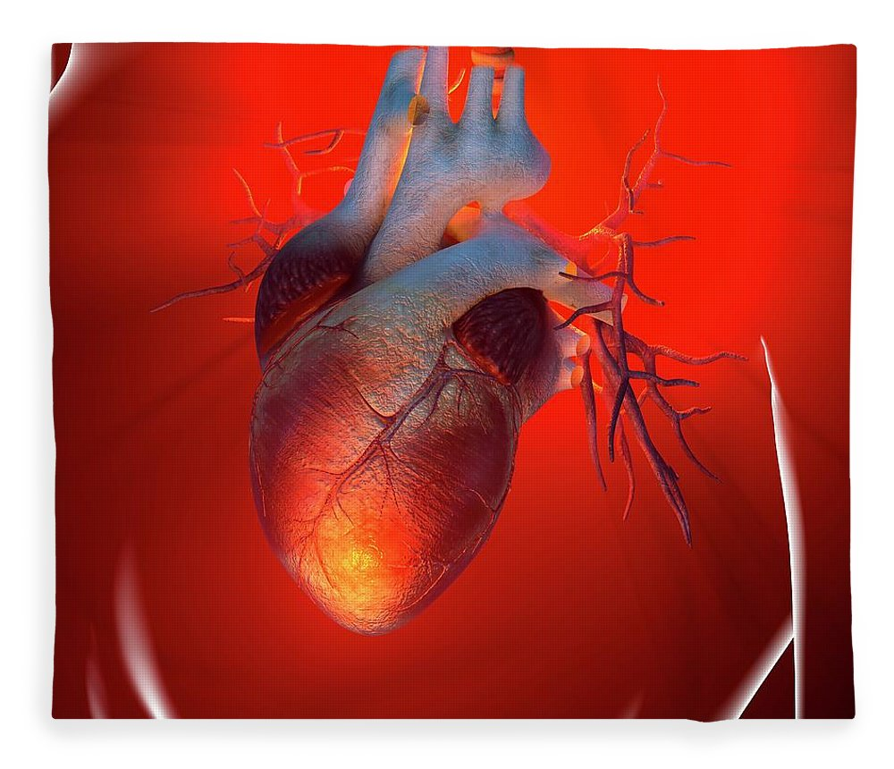 Event Fleece Blanket featuring the digital art Heart Attack, Conceptual Artwork by Science Photo Library - Roger Harris