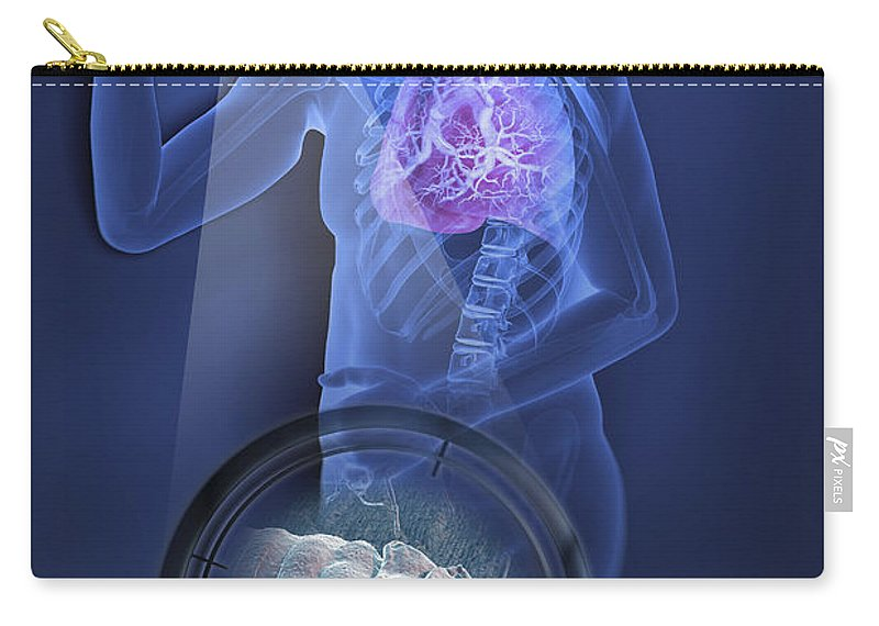 Parasites Carry-all Pouch featuring the photograph Bed Bugs And Sleeping by Science Picture Co