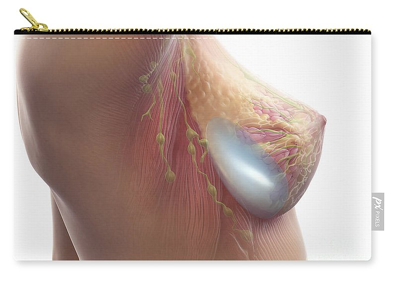 Transparent Carry-all Pouch featuring the photograph Breast Implant by Science Picture Co