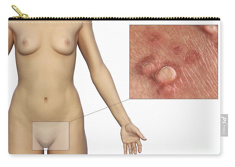 Venereal Wart Carry-all Pouch featuring the photograph Genital Warts by Science Picture Co