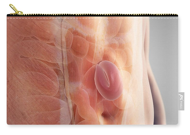 3d Visualisation Carry-all Pouch featuring the photograph Ventral Hernia by Science Picture Co