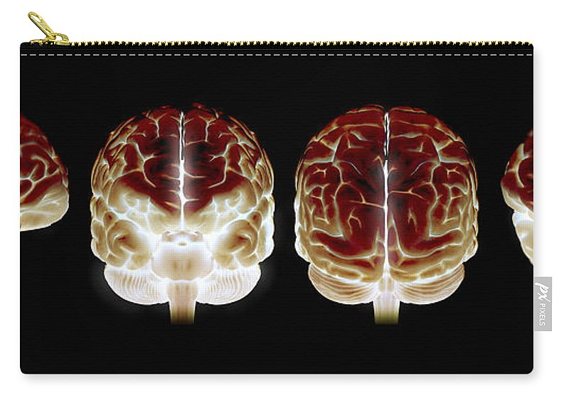 Temporal Lobe Carry-all Pouch featuring the photograph The Human Brain by Science Picture Co