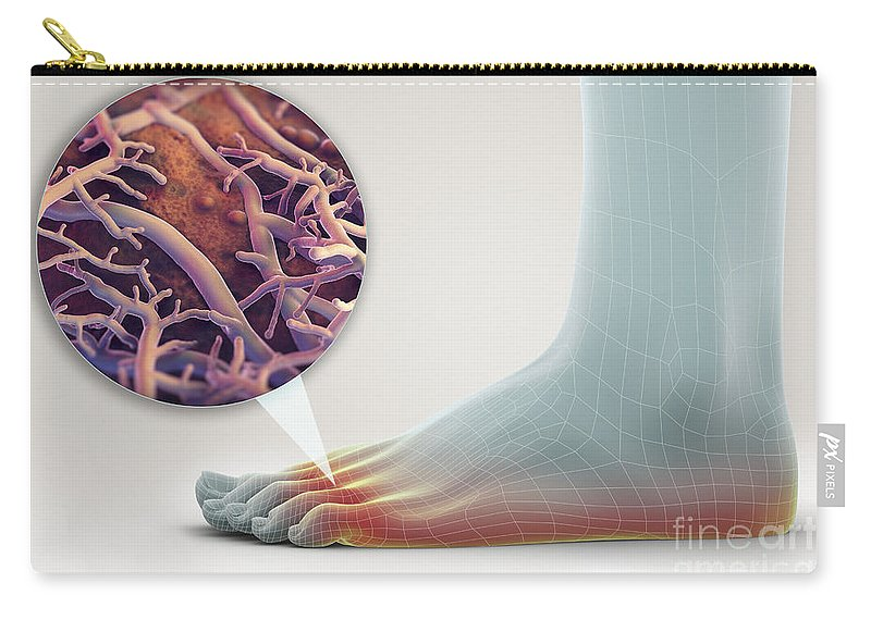 Anatomical Model Carry-all Pouch featuring the photograph Athletes Foot by Science Picture Co