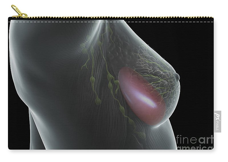 3d Visualisation Carry-all Pouch featuring the photograph Breast Implant by Science Picture Co