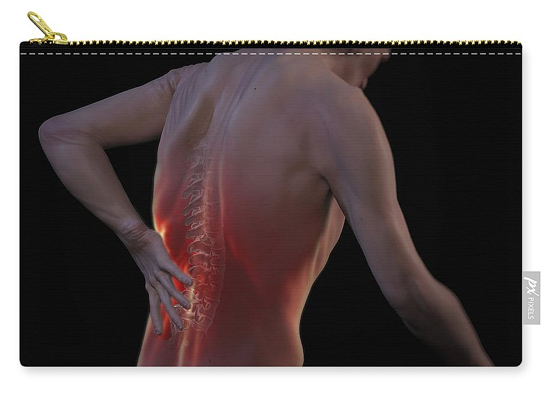 Back Ache Carry-all Pouch featuring the photograph Back Pain by Science Picture Co