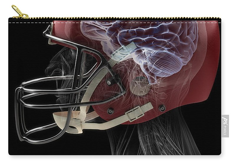 Internal Organs Carry-all Pouch featuring the photograph Brain Injury by Science Picture Co