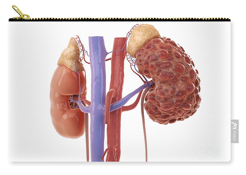 3d Model Carry-all Pouch featuring the photograph Polycystic Kidney by Science Picture Co