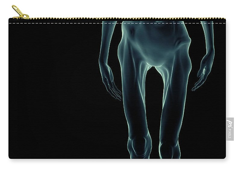 Body Dysmorphia Carry-all Pouch featuring the photograph Anorexia by Science Picture Co