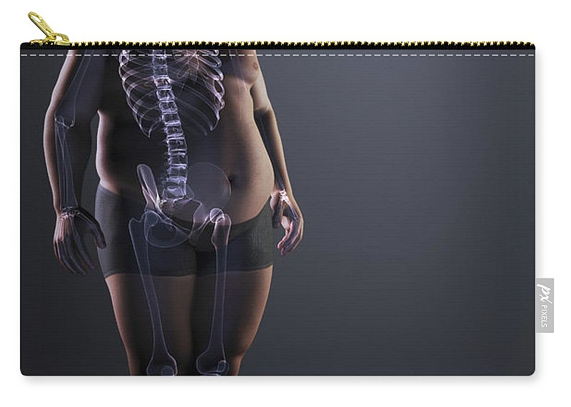 Transparent Carry-all Pouch featuring the photograph Obesity by Science Picture Co