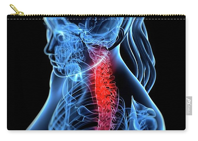 Anatomy Carry-all Pouch featuring the digital art Back Pain, Conceptual Artwork by Sciepro