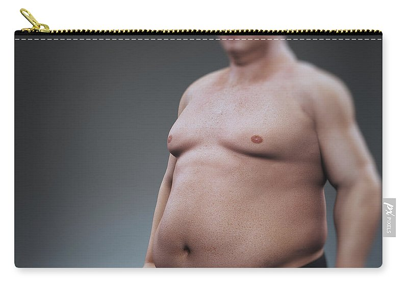 Abdominal Carry-all Pouch featuring the photograph Obesity by Science Picture Co