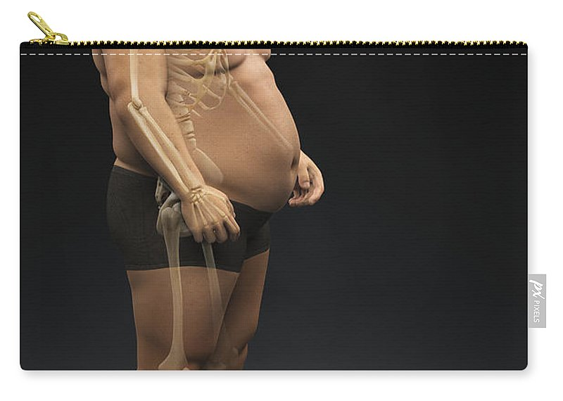 Transparency Carry-all Pouch featuring the photograph Obesity by Science Picture Co