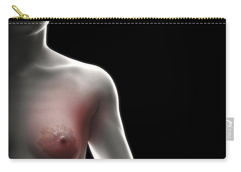 Transparency Carry-all Pouch featuring the photograph Breast Tissue by Science Picture Co