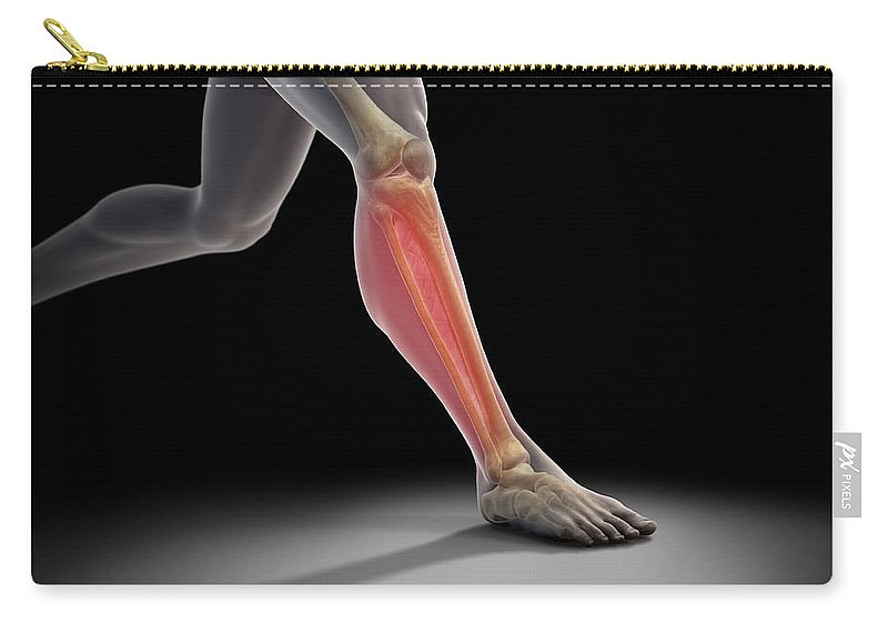 Injure Carry-all Pouch featuring the photograph Medial Tibial Stress Syndrome by Science Picture Co