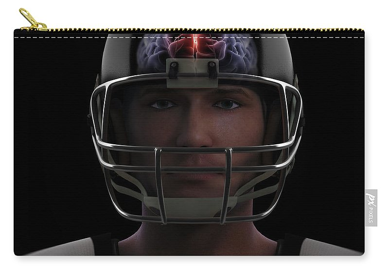 3d Model Carry-all Pouch featuring the photograph Brain Injury by Science Picture Co