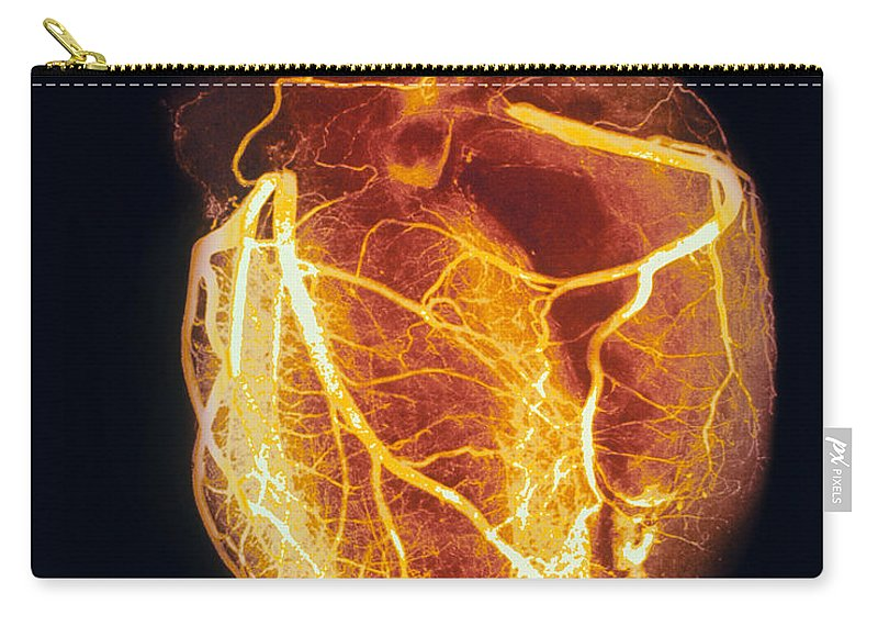 Angiogram Carry-all Pouch featuring the photograph Colored Arteriogram Of Arteries Of Healthy Heart by Spl