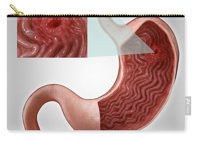 Grey Background Carry-all Pouch featuring the photograph Gastric Ulcer by Science Picture Co