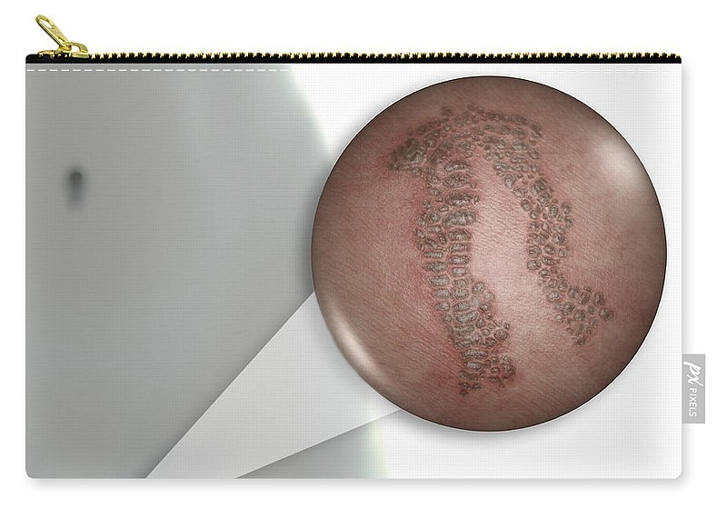 Warts Carry-all Pouch featuring the photograph Genital Warts Female by Science Picture Co