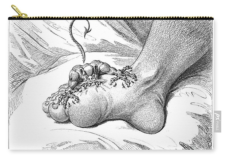 1799 Carry-all Pouch featuring the photograph Gout, 1799 by Granger