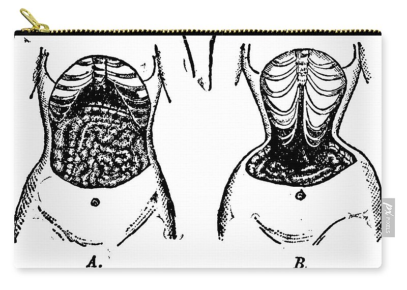 1903 Carry-all Pouch featuring the photograph Nature Versus Corsets, 1903 by Granger