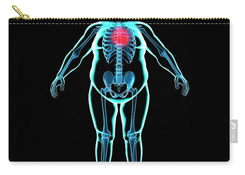 Risk Carry-all Pouch featuring the digital art Obese Mans Heart, Artwork by Science Photo Library - Roger Harris