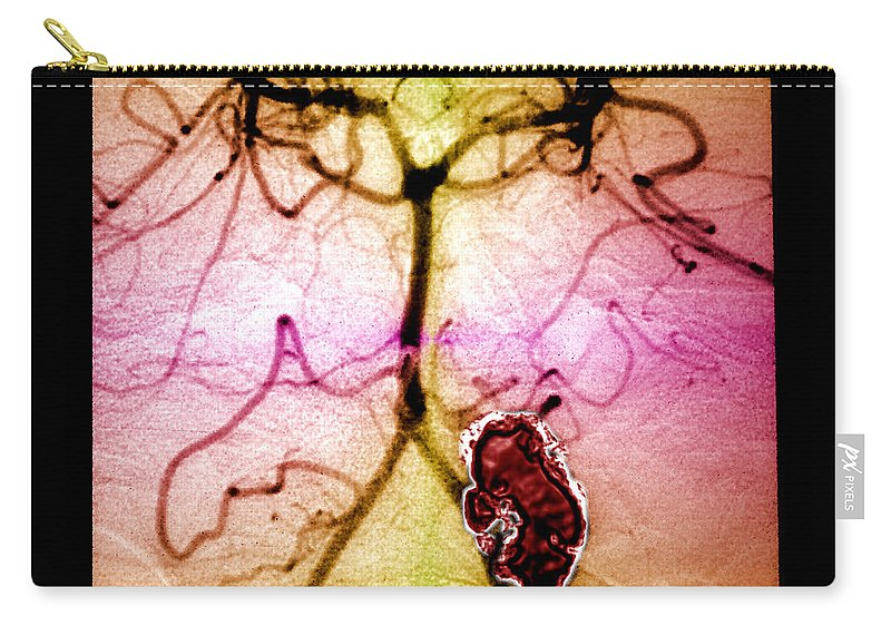 Cerebral Angiogram Carry-all Pouch featuring the photograph Rupturing Brain Aneurysm by Living Art Enterprises