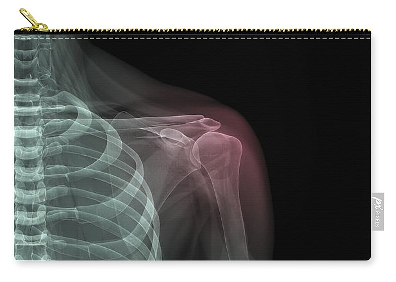 Rib Cage Carry-all Pouch featuring the photograph Shoulder Injury by Science Picture Co