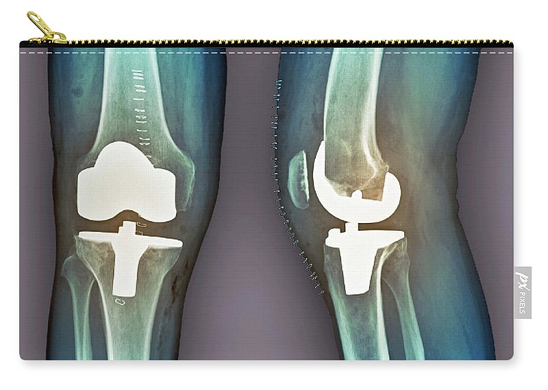 Artificial Carry-all Pouch featuring the photograph Total Knee Replacement, X-rays by Zephyr
