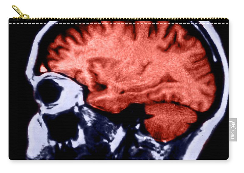 Brain Carry-all Pouch featuring the photograph Mri Of Normal Brain by Science Source