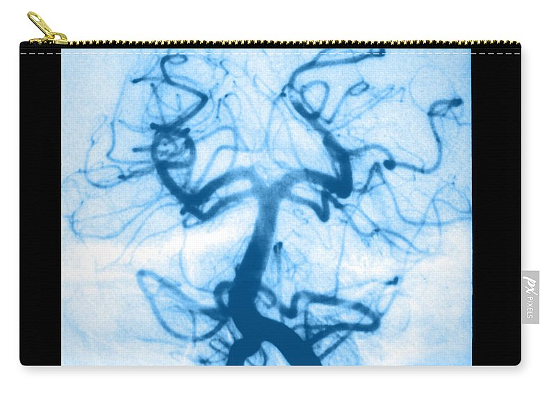 Abnormal Cerebral Angiogram Carry-all Pouch featuring the photograph Angiogram Of Embolus In Cerebral Artery by Medical Body Scans