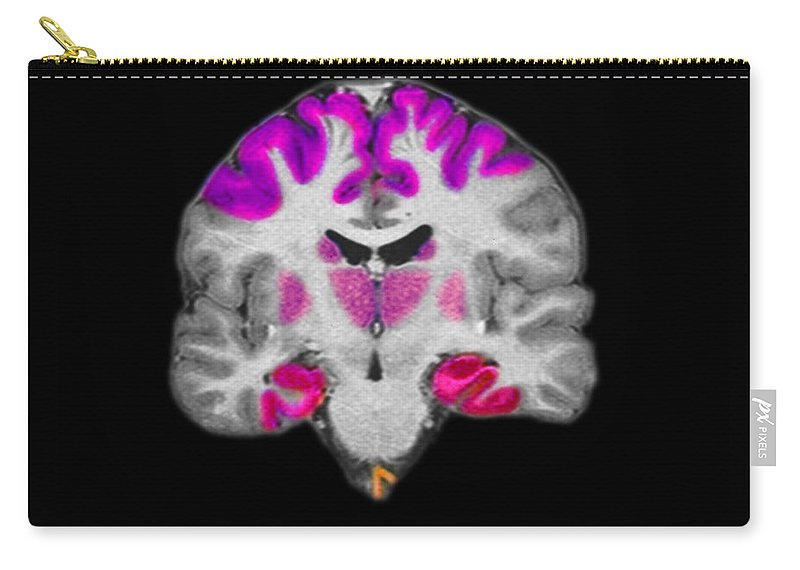 Mri Carry-all Pouch featuring the photograph Brain Areas Affected By Alzheimers by Medical Body Scans