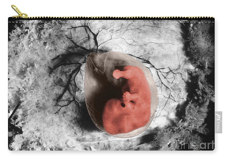 Human Carry-all Pouch featuring the photograph Human Embryo by Omikron