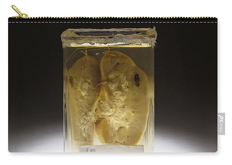 Science Carry-all Pouch featuring the photograph Kidney, Stab Wound, 1937 by Science Source