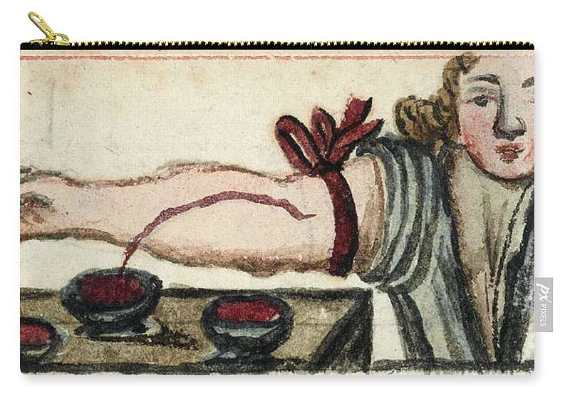 Historic Carry-all Pouch featuring the photograph Bloodletting, Illustration, 1675 by Wellcome Images
