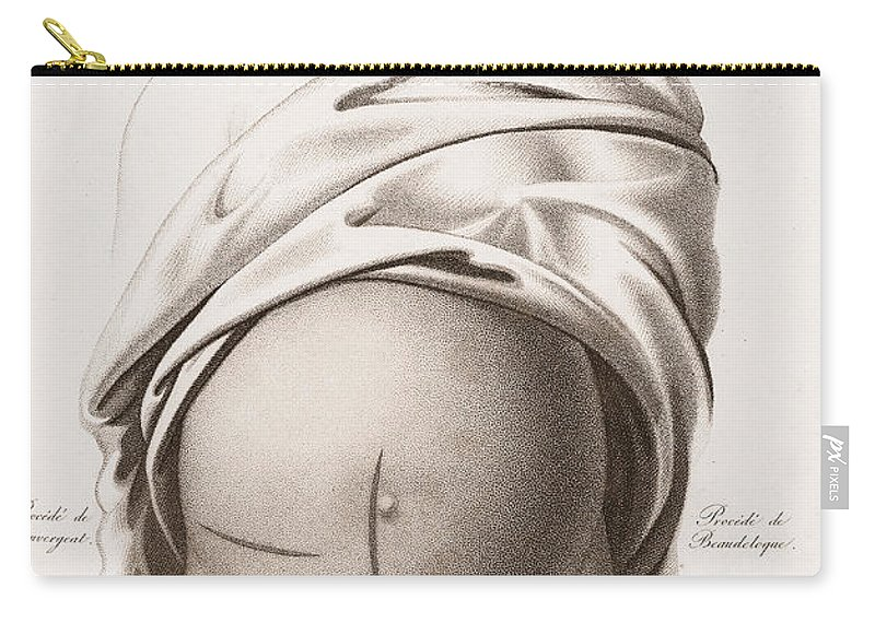 Historic Carry-all Pouch featuring the photograph Cesarean Section, Incisions by Wellcome Images