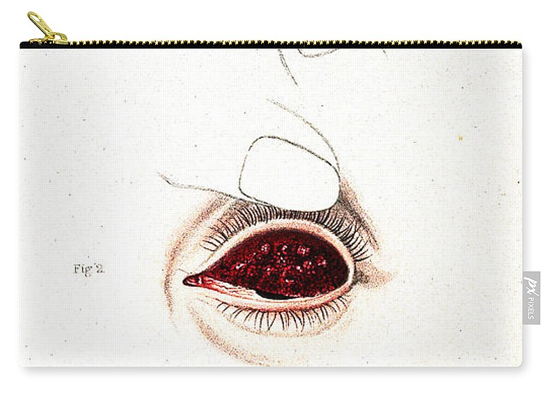 Historic Carry-all Pouch featuring the photograph Eye Inflammations, Historical by Wellcome Images
