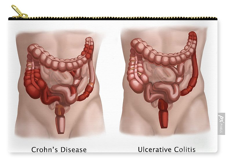Artwork Carry-all Pouch featuring the photograph Inflammatory Bowel Diseases by Spencer Sutton