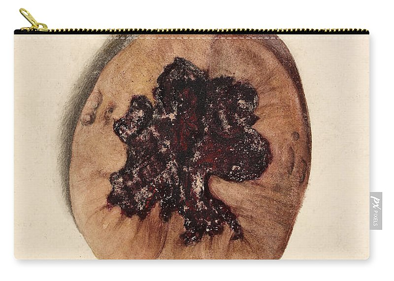Historic Carry-all Pouch featuring the photograph Renal Blood Clot, Kidney, Illustration by Wellcome Images