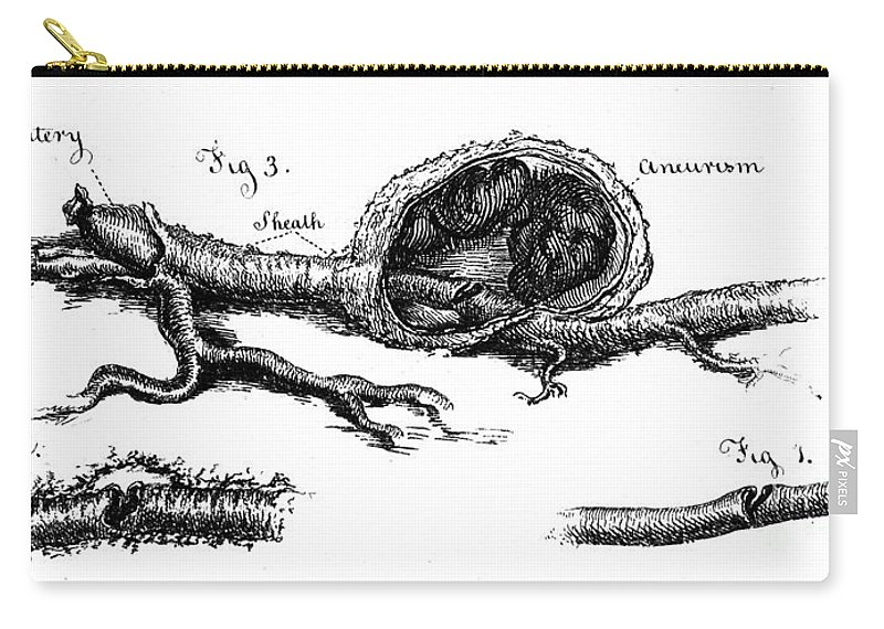 Historic Carry-all Pouch featuring the photograph Sections Of Dissected Artery by Wellcome Images