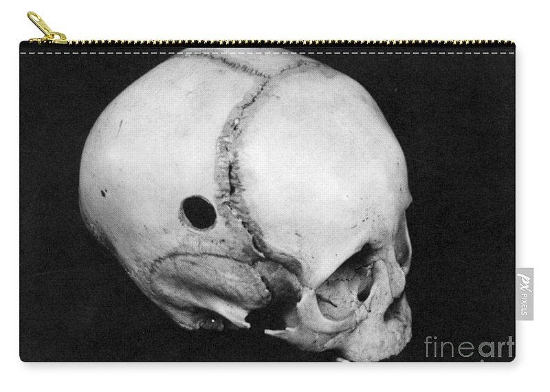 Alternative Carry-all Pouch featuring the photograph Trepanning: Skull by Granger