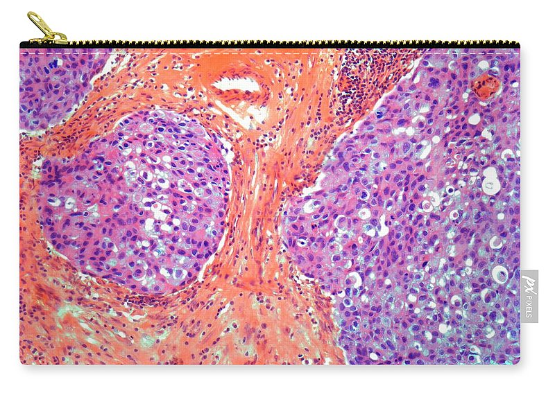Anatomy Carry-all Pouch featuring the digital art Breast Cancer, Light Micrograph by Steve Gschmeissner