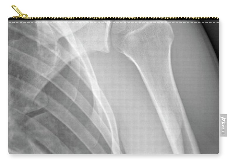 Tendon Carry-all Pouch featuring the photograph Normal Shoulder, X-ray by Zephyr