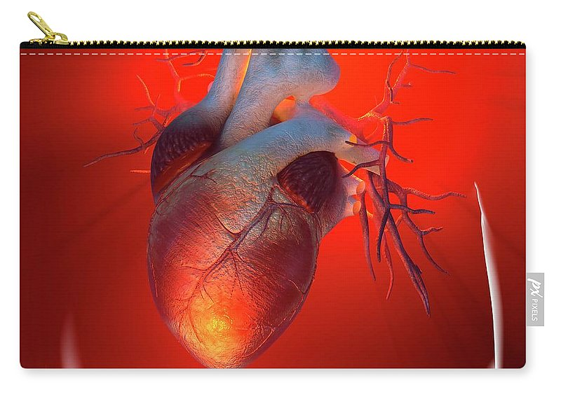 Event Carry-all Pouch featuring the digital art Heart Attack, Conceptual Artwork by Science Photo Library - Roger Harris