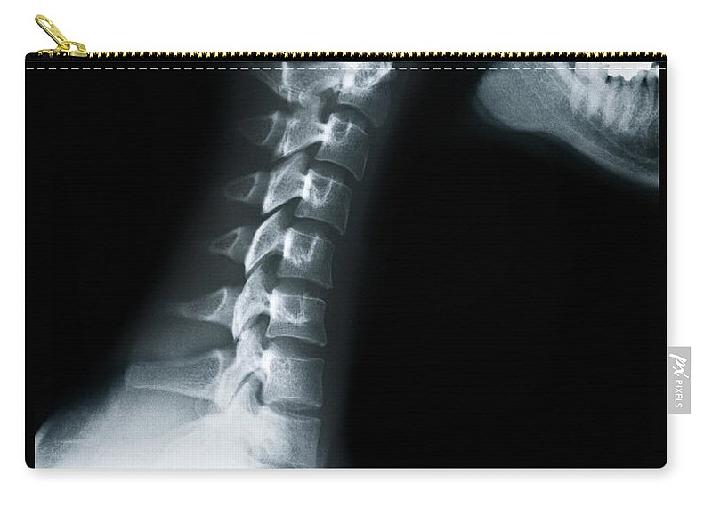 Human Vertebra Carry-all Pouch featuring the photograph X Ray Of Neck Vertebrae by Anthony Bradshaw