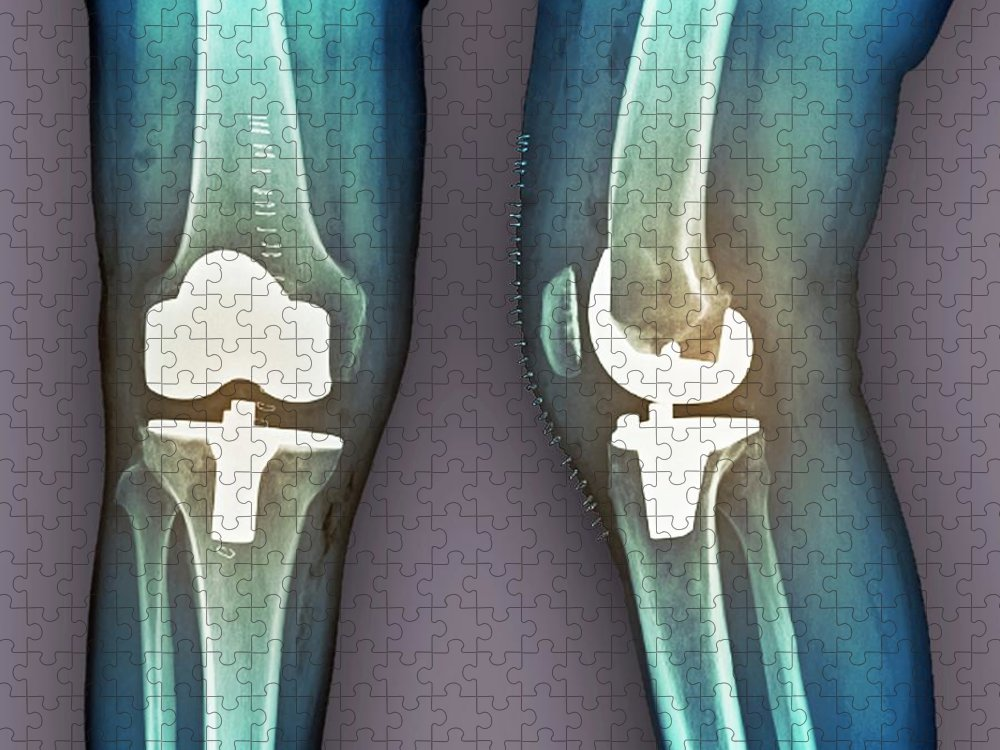 Artificial Puzzle featuring the photograph Total Knee Replacement, X-rays by Zephyr