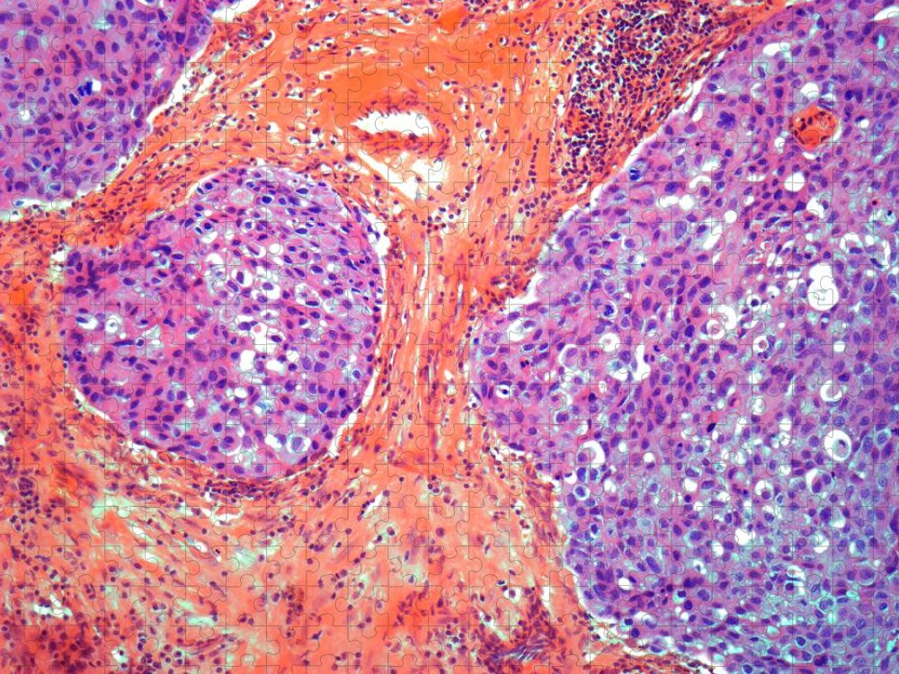 Anatomy Puzzle featuring the digital art Breast Cancer, Light Micrograph by Steve Gschmeissner
